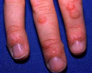 This is a picture of common warts withpermission from the University ...